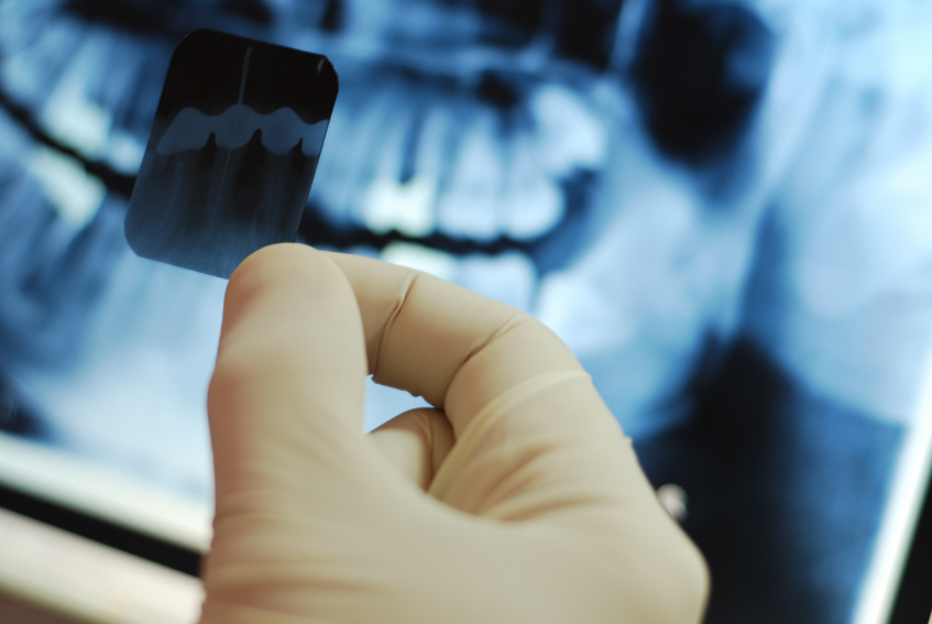 dental x-ray certification for the dental assistant